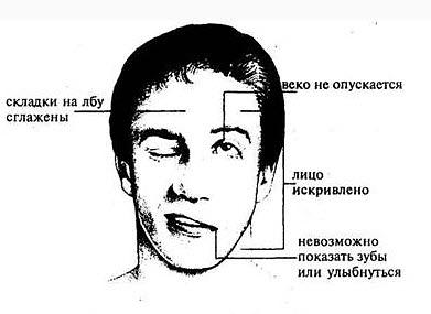 Инсульт_В_Лицо